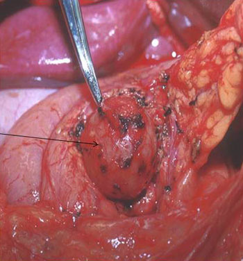 Image: A benign pancreatic cyst is evident at the tip of the clamp in this photo (Photo courtesy of the Indiana University School of Medicine).