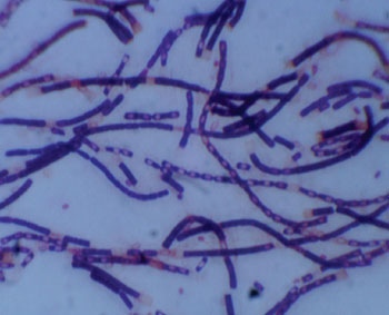 Caption: The anthrax bacteria – Bacillus anthracis, transmitted mainly through inhalation or skin abrasions (Photo courtesy of University of Missouri).