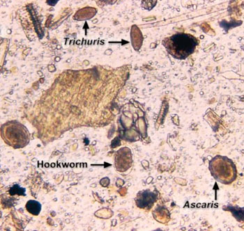 Image: Photomicrograph of Ascaris sp., Trichuris sp., and hookworm eggs in a fecal sample (Photo courtesy of Dr. Mae Melvin).