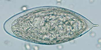 Image: Egg of Schistosoma haematobium in a wet mount of urine concentrates, showing the characteristic terminal spine (Photo courtesy of the Centers of Disease Control and Prevention).