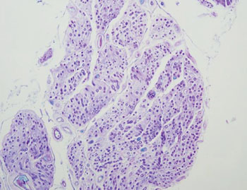 Image: Histology of amyotrophic lateral sclerosis showing markedly degenerated anterior spinal nerve root (cross section) with extensive demyelination (Photo courtesy of Dr. Hidehiro Takei, MD).