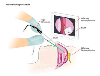 Image: The nasal brushing test involves the insertion of a rigid fiber-optic rhinoscope into the patient's nasal cavity. A sterile brush is then inserted alongside the scope to collect olfactory neurons by gently rolling along the mucosal surface (Photo courtesy of Dr. Gianluigi Zanusso, MD, PhD).