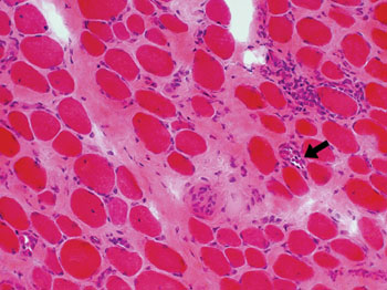 Image: Histopathology of increased endomysial connective tissue from a patient with Duchenne Muscular Dystrophy. Necrotic fibers arrowed (Photo courtesy of Washington University in St. Louis).