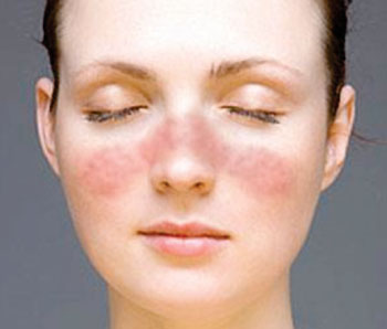 Image: The characteristic Malar rash or butterfly rash seen in a patient with systemic lupus erythematosus (Photo courtesy of the National Institute of Arthritis and Musculoskeletal and Skin Diseases).