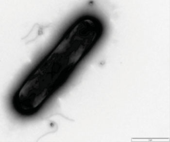 Image: Photomicrograph of Clostridium difficile (Photo courtesy of the University of Leicester).