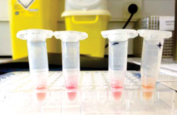 Image: The modified Carba NP test for detecting carbapenem-resistant Enterobacteriaceae. The test is validated by yellow color for positive (+) and red for negative (-) (Photo courtesy of Dr. Patrice Nordmann).