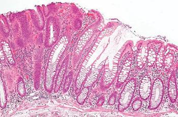 Image: Histopathology of a colorectal tubular adenoma without high grade dysplasia (Photo courtesy of Nephron).