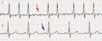 Image: ECG of atrial fibrillation (top) and normal sinus rhythm (bottom). The purple arrow indicates a P wave, which is lost in atrial fibrillation (Photo courtesy of Wikimedia Commons).