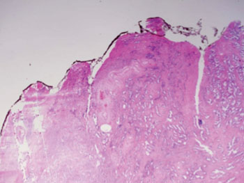 Image: GS3 prostate cancer: The tissue still has recognizable glands, but the cells are darker. At high magnification, some of these cells have left the glands and are beginning to invade the surrounding tissue or having an infiltrative pattern. This corresponds to a moderately differentiated carcinoma (Photo courtesy of Wikimedia Commons).