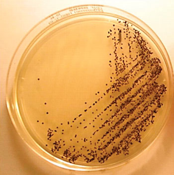 Image: Culture of Clostridium difficile from a stool sample after 24 hours of incubation on chromogenic medium forming typical black colonies (Photo courtesy of the Freeman Hospital).