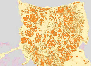 Image: Tumor cell populations identified using digital image analysis from a stained pathology slide, with the tumor regions detected and now colored orange (Photo courtesy of Definiens).