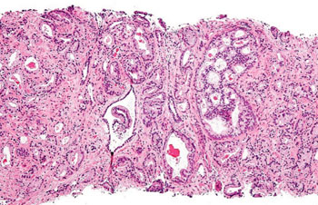 Image: Histopathology of prostatic acinar adenocarcinoma, the most common form of prostate cancer, Gleason pattern 4, from prostate curettings (Photo courtesy of Nephron).