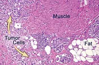 Image: Histopathology of a bladder with infiltrating high grade urothelial carcinoma, seen in muscle and fat (Photo courtesy of Johns Hopkins Pathology).