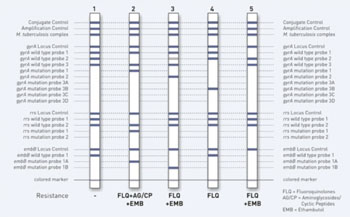 Image: The GenoType MTBDRsl rapid test to diagnose patients with multidrug resistant tuberculosis (MDR-TB) also provides information on further antibiotic resistances (Photo courtesy of Hain Lifescience).