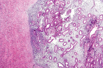 Image: Photomicrograph of endometriosis of the ovary (Photo courtesy of Nephron).
