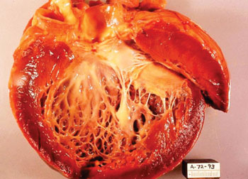Image: Gross pathology of idiopathic cardiomyopathy. Opened left ventricle of heart shows a thickened, dilated left ventricle with subendocardial fibrosis manifested as increased whiteness of endocardium at autopsy (Photo courtesy of Dr. Edwin P. Ewing, Jr.).