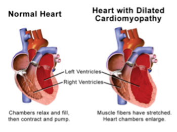 Image: Illustration of a normal heart compared to a heart with dilated cardiomyopathy (Photo courtesy of Blausen Gallery 2014. Wikiversity Journal of Medicine).