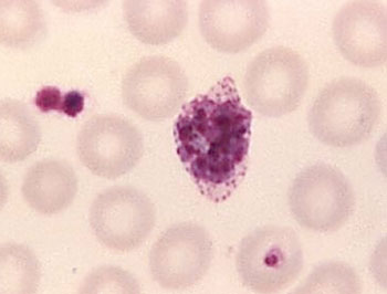 Image: A mature Plasmodium ovale trophozoite in a thin blood film (Photo courtesy of the CDC – US Centers for Disease control and Prevention).