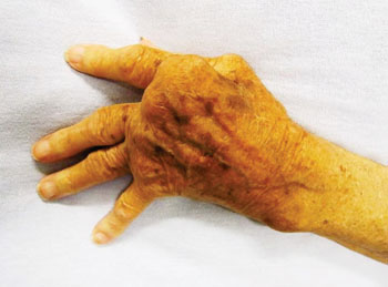 Image: Severe rheumatoid arthritis in a hand which was never treated (Photo courtesy of James Heilman, MD).