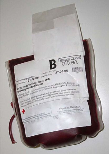 Image: Plastic bag containing 0.5 to 0.7 liters of packed red blood cells in citrate, phosphate, dextrose, and adenine (CPDA) solution (Photo courtesy of Fresenius HemoCare).