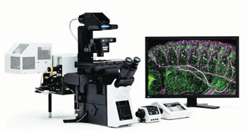 Image: The FluoView 500 Laser Scanning Confocal Microscope (Photo courtesy of Olympus Inc.).