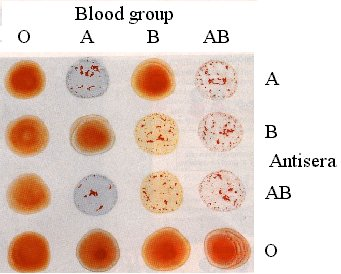 Image: Hemagglutination test of red cells used for typing ABO blood groups (Photo courtesy of University College London).