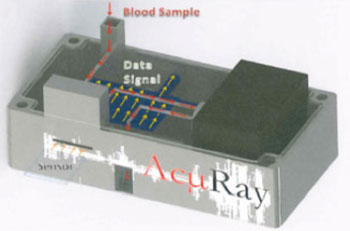 Image: A prototype model of the AcµRay point-of-care diagnostic device (Photo courtesy of Emory University).