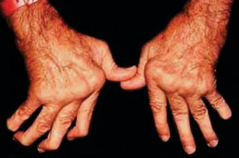 Image: Severe rheumatoid arthritis can destroy the joints and deform the wrist, finger and knuckle joints (Photo courtesy of Cedars-Sinai).