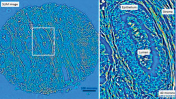 Image: Left: Quantitative phase image of an unstained prostatectomy sample from a patient who had a biochemical recurrence of prostate cancer. Right: A zoomed-in region from the quantitative phase image showing a cancerous gland with debris in the lumen. The stroma, or supportive tissue environment, shows discontinuities in the fiber length and disorganization in the orientation of the fibers (Photo courtesy of the University of Illinois).