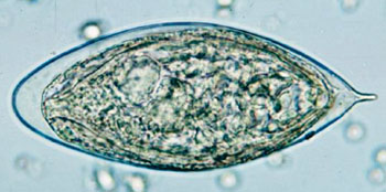 Image: Egg of Schistosoma haematobium in a wet mount of urine concentrates, showing the characteristic terminal spine (Photo courtesy of US Centers for Disease Control and Prevention).