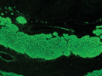 Image: Immunofluorescence pattern of endomysial antibodies produced using serum from a patient with celiac disease on monkey esophagus with a fluorescein isothiocyanate (FITC) conjugate (Photo courtesy of Simon Caulton).