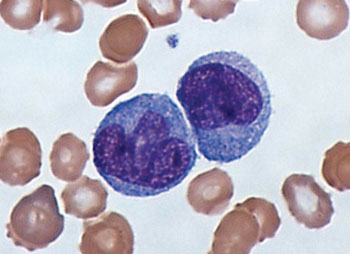 Image: A Giemsa-stained blood smear showing monocytes (Photo courtesy of Dr. Graham Beards).