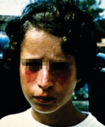 Image: The face of a patient with Bloom syndrome or congenital telangiectatic erythema, a rare autosomal recessive disorder (Photo courtesy of Dr. Amira M. Elbendary).