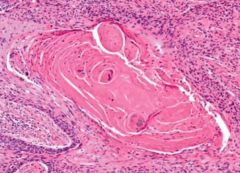 Image: Histopathology of Laryngeal Squamous Cell Carcinoma (Photo courtesy of Nikon).