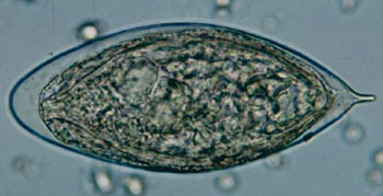 Image: Egg of Schistosoma haematobium in a wet mount of urine concentrates, showing the characteristic terminal spine (Photo courtesy of Centers for Disease Control and Prevention).