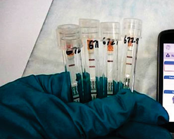Image: The ReEBOV Antigen Rapid Test for Ebola viral infection (Photo courtesy of Corgenix).
