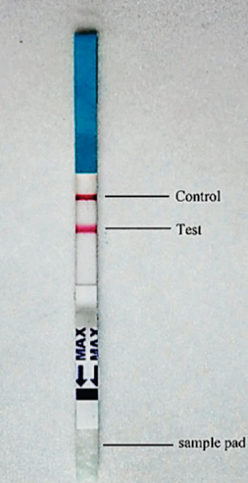 Image: An immunochromatographic strip tested with a serum sample from a visceral leishmaniasis patient, both the control and the test line turned pink (Photo courtesy of Chinese National Institute of Parasitic Diseases).