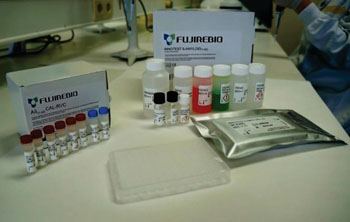 Image: The INNOTEST enzyme-linked immunosorbent assay for β-amyloid(1-42) (Photo courtesy of Fujirebio Europe).