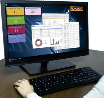 "Image: The new NovoPath Dashboard adds at-a-glance, ""real-time"" monitoring capability for anatomic pathology lab managers to assess operational data on the NovoPath platform, enabling to better anticipate bottlenecks and avoid potential problems (Photo courtesy of NovoPath)."