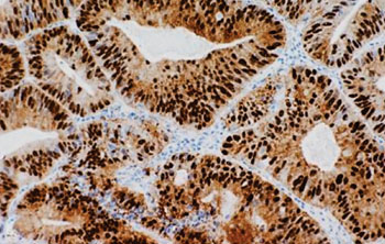 Image: Immunohistochemical staining of colorectal adenocarcinoma showing nuclear and cytoplasmic staining for β-catenin (Photo courtesy of Indiana University School of Medicine).