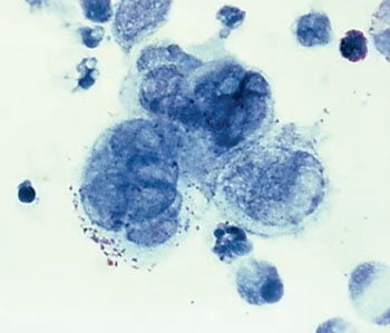 Image: Photomicrograph of the herpes simplex virus, within tissue taken from a penile lesion of a patient with genital herpes (Photo courtesy of the Centers of Disease Control and Prevention).