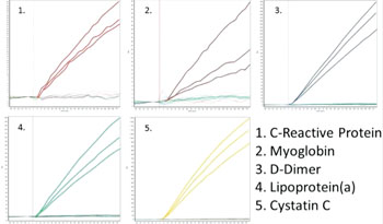 Image: For five (1-5) diagnostic antibodies: specific-binding curves of Total IgY in a complex protein solution binding to immobilized antigen. Data provide direct information about the specificity of three different production batches, highly valuable information especially for development of diagnostic assays. Curves for all antigen spots are shown. Binding of IgY is observed only to its respective immobilized antigen. (Photo courtesy of Sanovo Biotech).