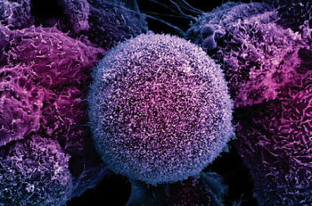 Image: Scanning electron micrograph of human prostate cancer cells (Photo courtesy of University of Sheffield).