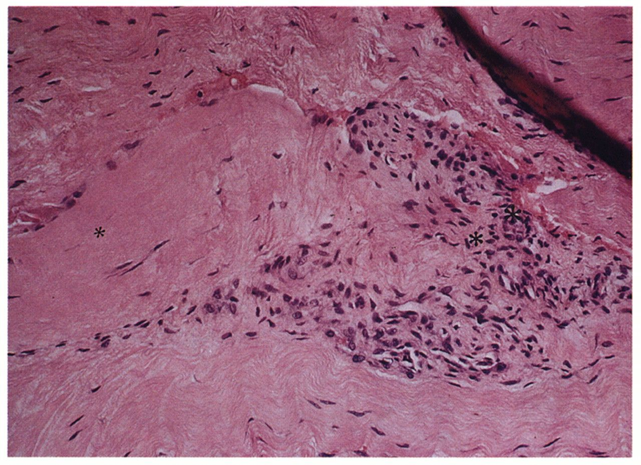 Image: Histologic appearance of tendinosis tissue shows a characteristic pattern of fibroblasts and vascular, atypical, granulation-like tissue (Photo courtesy of Dr. Barry S. Kraushaar, MD).
