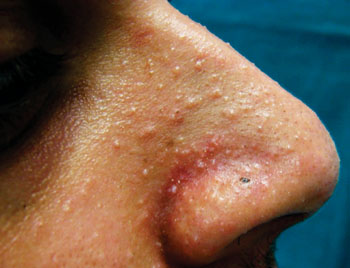 Image: Mucocutaneous papilloma manifestations around the nose of an autosomal dominant condition known as Cowden syndrome (Photo courtesy of University of Sao Paulo).