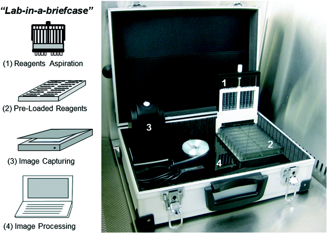 "Image: The 4 main components of the newly developed ""lab-in-a-briefcase."" (1) Disposable multiple syringe aspirator (MSA) devices, each of which can perform 10 replicate ELISA tests on each of the 8 samples. (2) Customized microwell plates preloaded with reagents that interface with the MSA. (3) Portable USB-powered film scanner for colorimetric signal quantification. (4) Portable computer for real-time data analysis (Photo courtesy of Barbosa AI et al., 2015, and the journal Lab on a Chip.)"