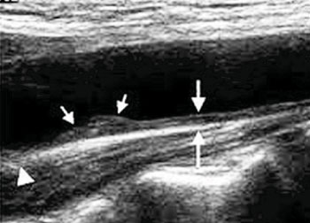 Image: Carotid Intima-Media Thickness (CIMT) ultrasound exam showing a carotid artery with a wall that is much thicker than normal and mild plaque formation (Photo courtesy of Preventive Cardiology Consultants).