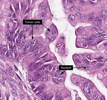 Image: Histopathology of epithelial ovarian cancer (Photo courtesy of the Human Protein Atlas).