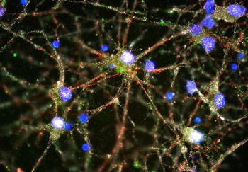 Image:	Micrograph of imaging experiment showing C4 (green) located at the synapses (red and white) of cultured primary human neurons (cell bodies in blue) (Photo courtesy of Heather de Rivera, McCarroll Laboratory).