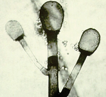 Image: Sporangiophores, columellae and primitive rhizoids of Rhizomucor spp., the zygomycetous fungus detected by the PathoChip, which has the ability to detect all known viruses, as well as a variety of bacteria, fungi, helminths, and protozoa (Photo courtesy of the University of Adelaide).